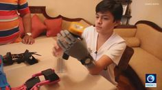 14 year-old without hand 3D-prints his own prosthesis - for less than $100