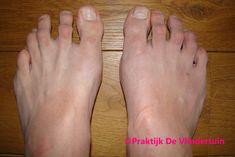 Pedicure, Fingers, Reflexology Massage, Pedicures, Toe Polish