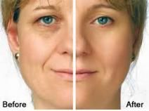 Get Sample at:https://www.marketreportsworld.com/enquiry/request-sample/10241167 This report studies Hyaluronic Acid Based Dermal Fillers in Global market, especially in North America, Europe, China, Japan, India and Southeast Asia, focuses on top manufacturers in global market, with sales, price, revenue and market share for each manufacturer, covering Galderma Allergan Genzyme Sanofi