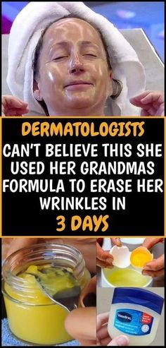 Do you have problems with wrinkles? If you are annoyed with all those expensive creams and beauty treatments here in this article we offer you this natural recipe that will help you get rid of the wrinkles even those ones in the most problematic areas. Beauty Care, Beauty Skin, Health And Beauty, Beauty Hacks, Diy Beauty, Homemade Beauty, Homemade Toner, Homemade Facial Mask, Beauty Guide
