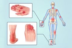 Psoriatic arthritis affects your body from your scalp to your toes. See psoriatic arthritis symptoms explained in pictures and how to manage the symptoms. Psoriatic Arthritis Symptoms, Signs Of Arthritis, Yoga For Arthritis, Natural Remedies For Arthritis, Knee Arthritis, Psoriasis Arthritis, Inflammatory Arthritis, Juvenile Arthritis