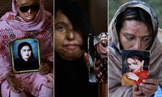The Human Rights Commission of Pakistan: In 2011 943 woman were murdered, 9 had their noses cut off, 98 were tortured, 47 set on fire, 38 attacked with acid. (Daily Mail)