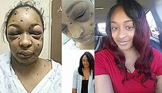Woman Shot In Face With 20-Gauge And Survives, Releases Recovery Photos After A Year