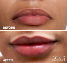 If Your ready for that perfect pout, Pucker up here at 💋✨ You deserve fullness , you deserve symmetry, you deserve to… Fat Transfer, Body Proportions, Amazing Transformations, Lip Fillers, Tummy Tucks, Body Contouring, Liposuction, Plastic Surgery, Cellulite
