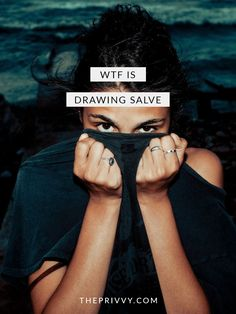 WTF is Drawing Salve? | Drawing Salve - Smile's PRID - Cystic Acne - Acne Treatment