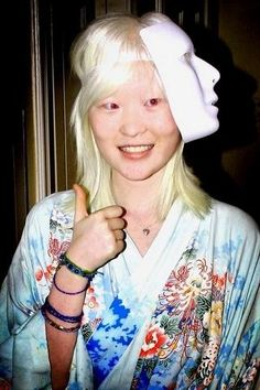 Oculocutaneous (pronounced ock-you-low-kew-TAIN-ee-us) albinism (OCA) involves the eyes, hair and skin.