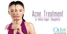 Discover your True Beauty with an Acne Clear Face in Indira Nagar, Bangalore https://www.olivaclinic.com/blog/acne-treatment-in-indira-nagar-bangalore/