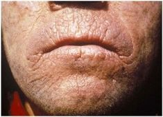 Study The Remarkable Facts Regarding Constant Yeast Infection - Candidiasis Wiki Best Yeast Infection Treatment, Teeth Bleaching Kit, Best Teeth Whitening Kit, Unwanted Facial, Acne Rosacea, Natural Acne Remedies, Acne Treatment, Skin Care