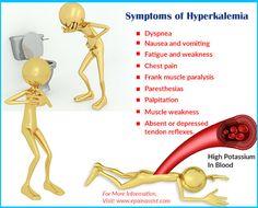 Symptoms of Hyperkalemia Nephrotic Syndrome, High Potassium, Nursing Mnemonics, Metabolic Disorders, Muscle Weakness, Nurse Life, Health Education, Physical Therapy, Metabolism