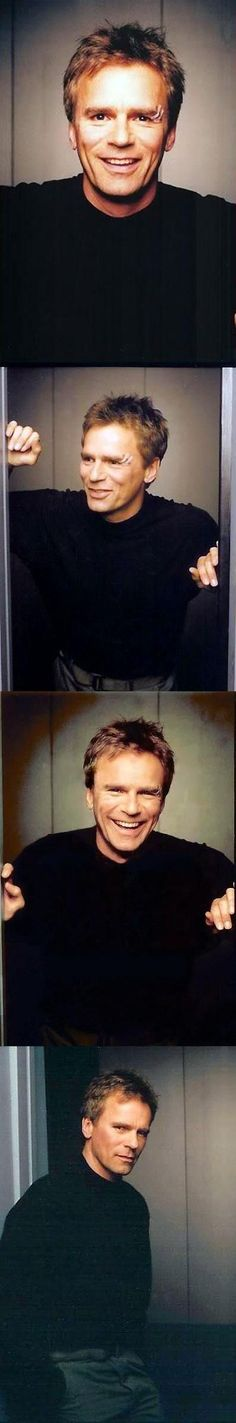 Jack O'Neill (RDA) With Eye BooBoo From Accident On Set of TV Series Stargate SG1