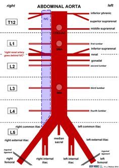 Abdominal Aorta : Triple AAA (Aneurysm of Aorta in this area)