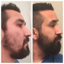 Some Information On Minoxidil Beards