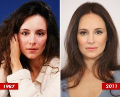 celebrity before and after plastic surgery | Madeleine Stowe Plastic Surgery Before and After. She lost that sweet look od her eyes.