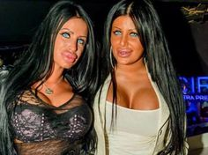 Plastic surgery gone wrong times 2!