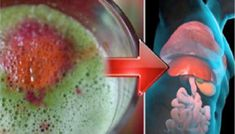 Why Liver Detox Is Important The liver is one of the vital organs in the body – it eliminates toxins and takes part in numerous enzyme processes important for proper body function. However, hectic … natural liver detox cleanse Natural Liver Detox, Natural Detox Drinks, Liver Detox Cleanse, Detox Diet Plan, Healthy Liver, Healthy Detox, Healthy Food, Bebidas Detox, Digestive Detox