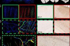 Beyin hasarı bilgisayar modelleri, beyin kan damarlarını şimdiye kadarki en yüksek çözünürlükte haritalıyor Model, Scale Model, Models, Template, Pattern, Mockup, Modeling
