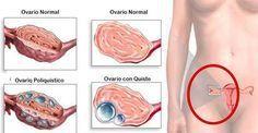 Los quiste de ovarios y útero son unas de las afecciones de salud más comunes entre las mujeres. Estos se producen cuando hay una acumulación de fluidos y desperdicios en estas áreas, aunque no son peligrosos pueden representar una terrible molestia de salud. Generalmente se asocian con cáncer pero esto no es así, no todas …