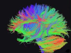 A new study from the Center for Vital Longevity at The University of Texas at Dallas is among the first to investigate how degraded connections in certain parts of the adult brain might affect the ability to perform the financial calculations that are vital to everyday life among older...
