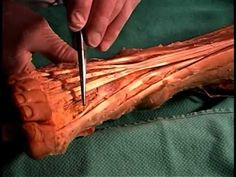 Human Anatomy Dissection 26 Leg and Foot