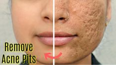 3 days challenge to remove acne pits and scars, Get smooth, flawless skin like never before