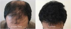 Using FUT and FUE hair transplant techniques gives the maximum hair coverage, but there is often a compromise, with less density over the crown. Micro scalp pigmentation blends with the transplanted hair to increase the illusion of density by blocking the skin complexion, resulting in even for advanced male pattern baldness stages the appearance of a strong, full head of hair.  #hairtransplant  #microscalppigmentation  #hairloss  #vincihair  #baldness  #futhairtransplant  #fuehair