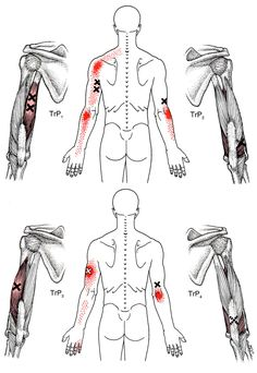 Triceps Brachii | The Trigger Point & Referred Pain Guide