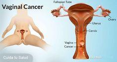 El cáncer ovárico es un tipo de cáncer que comienza en los ovarios, los órganos reproductores femeninos que producen los óvulos. El cáncer ovárico es el quinto cáncer más común entre las mujeres. Provoca más muertes que cualquier otro cáncer del aparato reproductor femenino.La causa de…