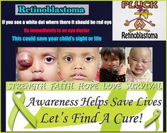 Retinoblastoma : A Rare Type of Eye Cancer