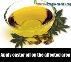 Did you you know castor oil has proven to be a successful treatment for varicose veins? Castor Oil for Varicose Veins. Learn how castor oil can be beneficial for varicose veins. Read more. Natural Treatments, Natural Cures, Natural Health, Natural Skin, Natural Oils, Eye Treatment, Vitiligo Treatment, Hair Treatments, Natural Remedies
