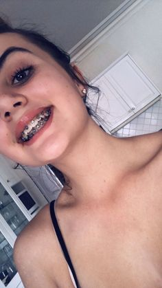 :) braces ♥ - Another! Braces Smile, Teeth Braces, Pink Braces, Black Braces, Dental Braces, Cute Braces Colors, Cute Girls With Braces, Braces Before And After, Braces Tips