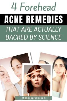 We've compiled a list of the top forehead acne treatments that you can use right now. Click here to know more about it.#natural remedies for acne #remedies for acne