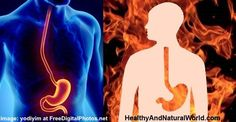 Proven Home Remedies for Heartburn (Acid Reflux)