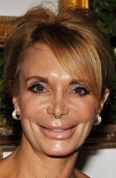bad plastic surgery,  Go To www.likegossip.com to get more Gossip News!