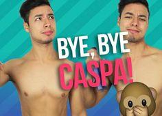 VIDEO · Alan Cajaroja · ¡Bye, bye caspa!
