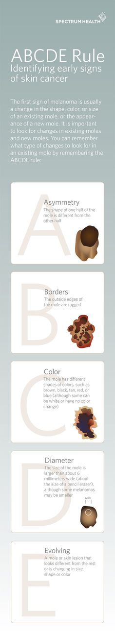 Use the ABCDE rule to help remember what types of changes you should look out for with moles on your skin.