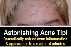 Astonishing Acne Tip   Works In Minutes!