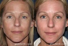 Female has Fraxel Laser Restore treatment with Dr. Groff for skin pigmentation, melisma, skin pigmentation.