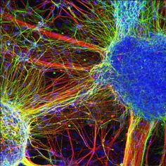 Schizophrenic brain cells created in the lab