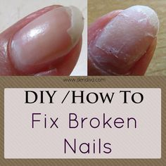 1000 Ideas About Fix Broken Nail On Pinterest Finger