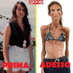 Anorexia is an incredibly dangerous illness. People will starve themselves until they feel their body looks the way it should. You can find this illness anywhere. Although it is more commonly found with women, men suffer from this as well. It is usually a combination of low self esteem and the pressure society pushes upon individuals to live or look a certain way.