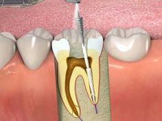 ProPoint- How to obturate a root canal with SmartSeal Dental Implant Procedure, Dental Implants, Zoom Teeth Whitening, Cracked Tooth, Tooth Replacement, Tooth Sensitivity, Tooth Enamel, Root Canal Treatment, Dental Problems