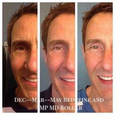 Can you tell the difference in these guys before and after pictures after using Rodan + Fields Redefine + Amp MD tool? Guys...Skincare is not just for women. You have skin too! Results like these are  typical of Rodan + Fields skincare! All the products have multi-med therapy with the right ingredients and when used in the right order are guaranteed to give results! https://cdearcangelis.myrandf.com/Shop/Product/AAPRS01