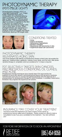Photodynamic Therapy (PDT) is here to save your skin! Call (615)454-9456 to book your appointment now.