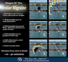 Many people have never heard about this type of Migraine, and it is more common then you might think. Have you ever experienced this?  It's called the Ocular Migraine