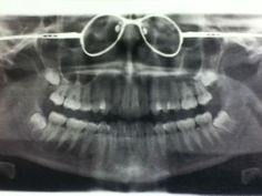 Please take your glasses off before getting a dental x-ray. #Dentaltown - Dentally Incorrect