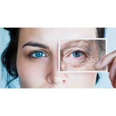 Tratamente naturiste impotriva ridurilor din jurul ochilor