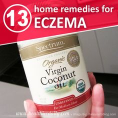 13 Home Remedies To Get Rid Of Eczema Naturally | Healthier Daily