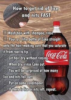 Use CocaCola to get rid of head lice