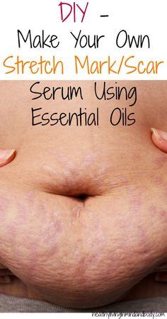 Young Living Essential Oils: Stretch Mark Scar Serum