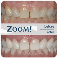 Teeth Whitening & Deep Bleaching Clearwater There are a number of approaches to whitening the teeth: Over-the-counter bleach is not as strong a concentration as the professional whitening materials used in the dental office. Liquid Smile is a paint-on Professional-strength whitening material that is better than over the counter, but washes off easily due to saliva flow. …